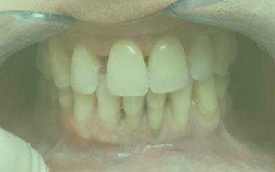 Ismerkedjünk a Parodontológiával!